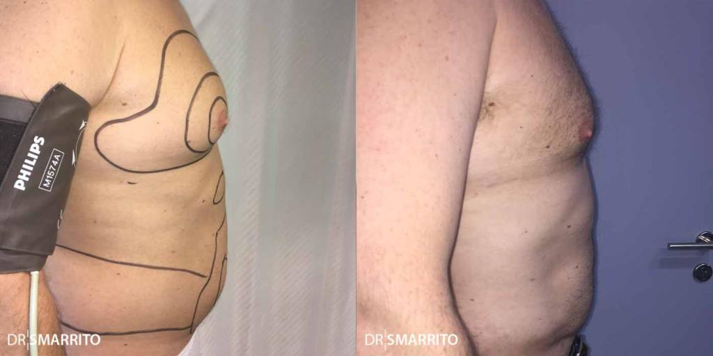 Avant Après 1 de liposuccion : photo de profil