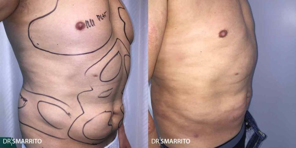 Avant Après 2 de liposuccion : photo de profil