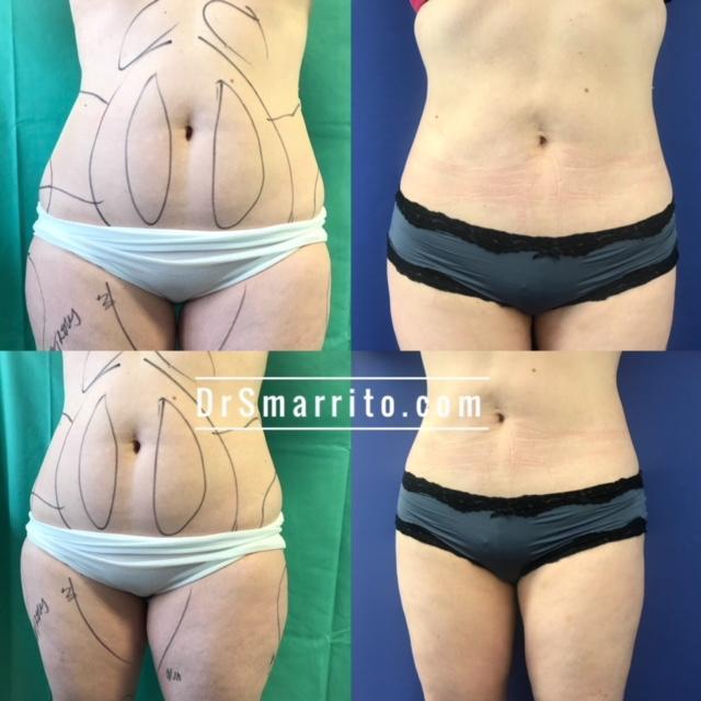 Liposuccion du ventre et jambes